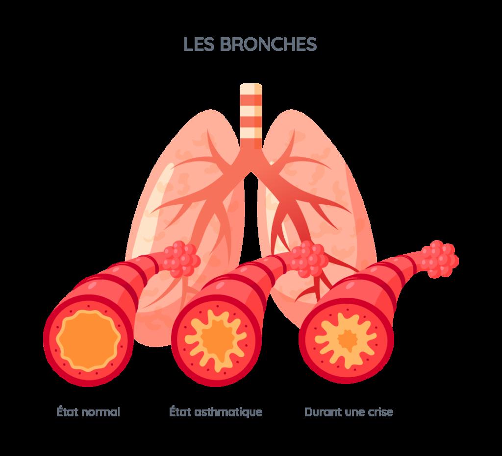 bronches pourmons asthme