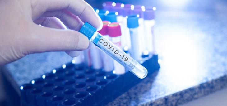 Comment réaliser un test salivaire pour le dépistage du covid ?